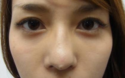 東京銀座のレティシアクリニック 【切らない】目の下のクマたるみ取り 症例13-2