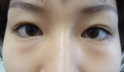 東京銀座のレティシアクリニック 【切らない】目の下のクマたるみ取り 症例14-1