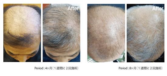 東京銀座のレティシアクリニック RETURN HAIR SOLUTION/HAIR BOOSTER 症例1