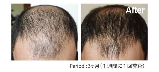 東京銀座のレティシアクリニック RETURN HAIR SOLUTION/HAIR BOOSTER 症例2