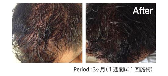 東京銀座のレティシアクリニック RETURN HAIR SOLUTION/HAIR BOOSTER 症例3