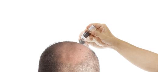 東京銀座のレティシアクリニック RETURN HAIR SOLUTION