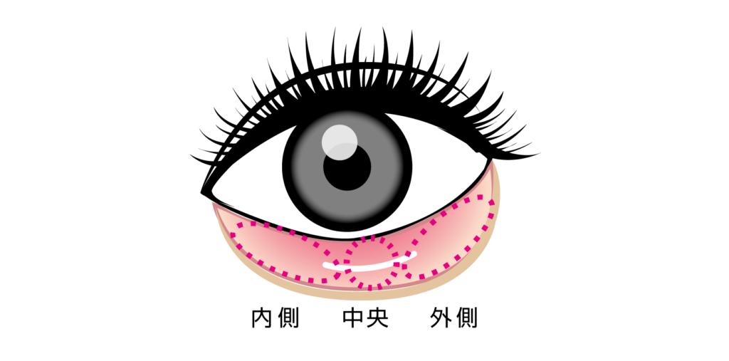 横浜のセシリアクリニック 【切らない】目の下のクマたるみ取り