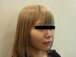 東京銀座のレティシアクリニック メーラーファット 症状1-1
