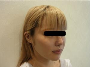 東京銀座のレティシアクリニック メーラーファット 症例1-2