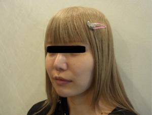 東京銀座のレティシアクリニック メーラーファット 症例1-3