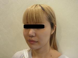 東京銀座のレティシアクリニック メーラーファット 症例1-4
