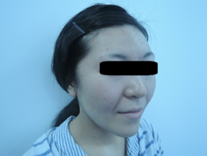 東京銀座のレティシアクリニック メーラーファット 症例2-1
