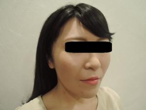 東京銀座のレティシアクリニック メーラーファット 症例2-2