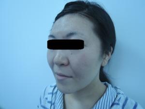東京銀座のレティシアクリニック メーラーファット 症例2-3