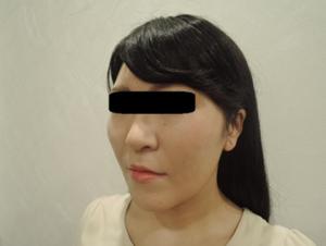 東京銀座のレティシアクリニック メーラーファット 症例2-4