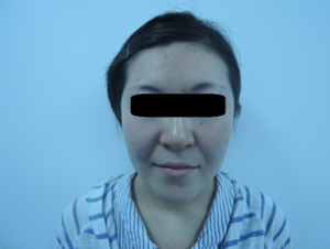 東京銀座のレティシアクリニック メーラーファット 症例2-5