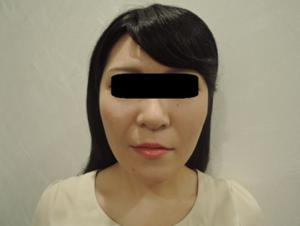 東京銀座のレティシアクリニック メーラーファット 症例2-6