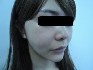 東京銀座のレティシアクリニック メーラーファット 症例3-1