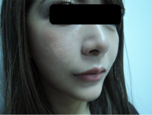 東京銀座のレティシアクリニック メーラーファット 症例3-2