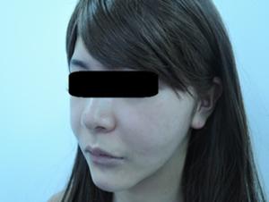 東京銀座のレティシアクリニック メーラーファット 症例3-3