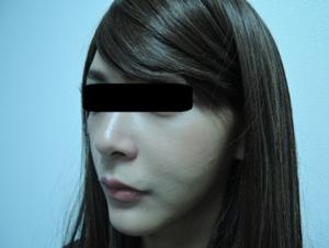 東京銀座のレティシアクリニック メーラーファット 症例3-4