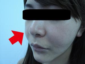東京銀座のレティシアクリニック メーラーファット 症例3-5