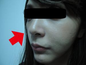 東京銀座のレティシアクリニック メーラーファット 症例3-6
