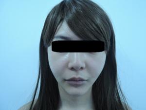 東京銀座のレティシアクリニック メーラーファット 症例3-7