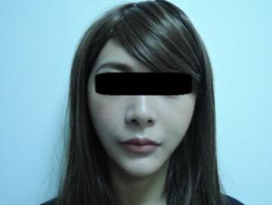東京銀座のレティシアクリニック メーラーファット 症例3-8