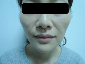 東京銀座のレティシアクリニック メーラーファット 症例4-2