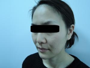 東京銀座のレティシアクリニック メーラーファット 症例4-3