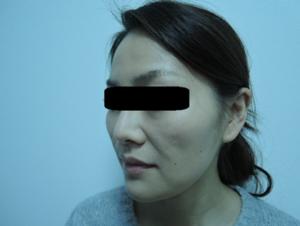 東京銀座のレティシアクリニック メーラーファット 症例4-4