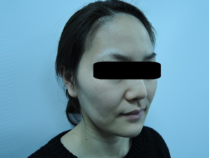 東京銀座のレティシアクリニック メーラーファット 症例4-5