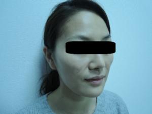 東京銀座のレティシアクリニック メーラーファット 症例4-6