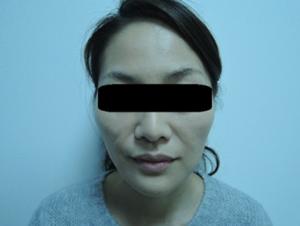 東京銀座のレティシアクリニック メーラーファット 症例4-8