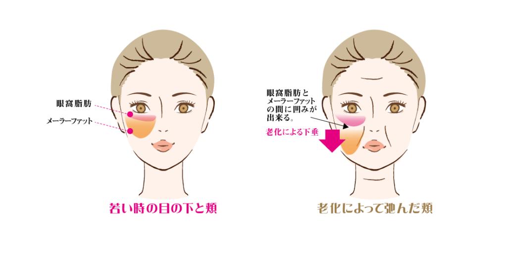 東京銀座のレティシアクリニック 美容整形外科皮膚科 メーラーファット 頬の脂肪吸引
