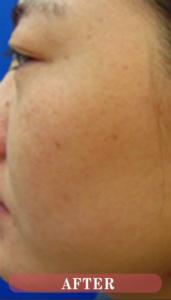 東京銀座のレティシアクリニック シミ取り注射 症例