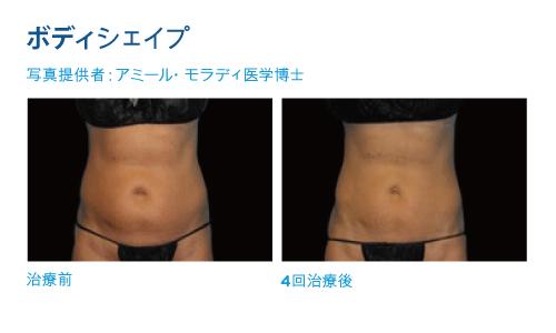 東京銀座のレティシアクリニック ヴァンキッシュ(痩身マシン)症例