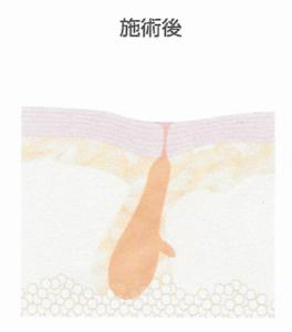 東京銀座のレティシアクリニック カーボンピーリング4