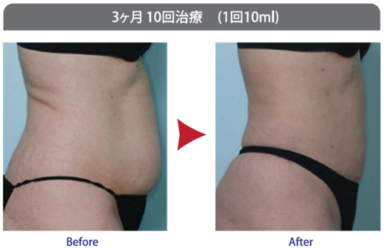 東京銀座のレティシアクリニック 脂肪溶解注射カベリン症例