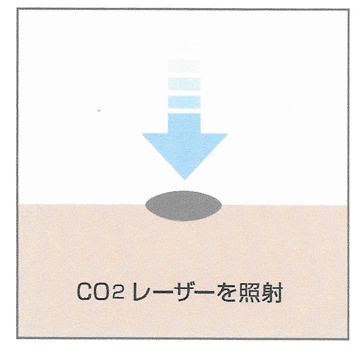 東京銀座のレティシアクリニック CO2(炭酸ガズ)レーザー1 シミ取り