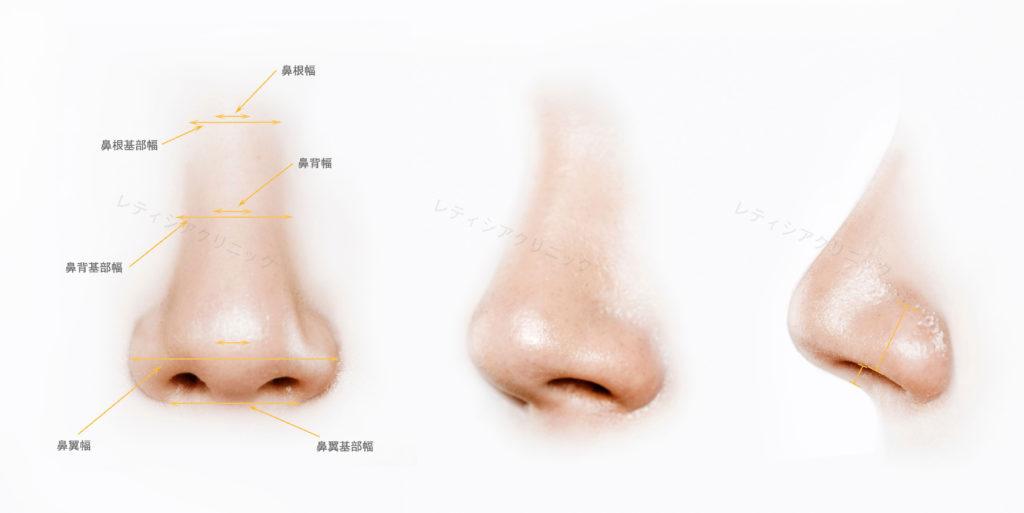 東京銀座のレティシアクリニック 鼻尖形成術・鼻尖縮小術