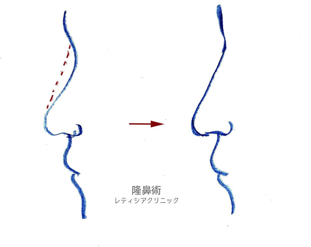 東京銀座のレティシアクリニック 隆鼻術