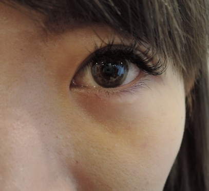 腫れ 目の下