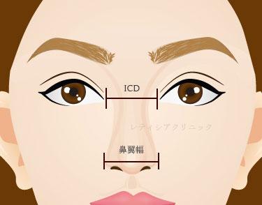 東京銀座のレティシアクリニック 鼻翼縮小術