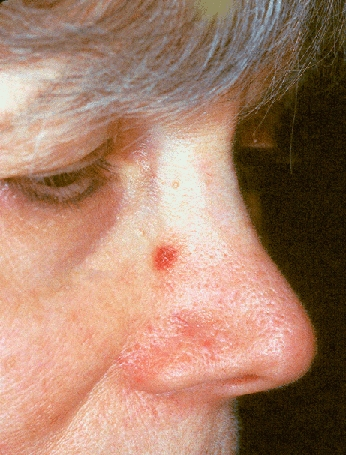 東京銀座のレティシアクリニック VビームⅡ 血管腫症例