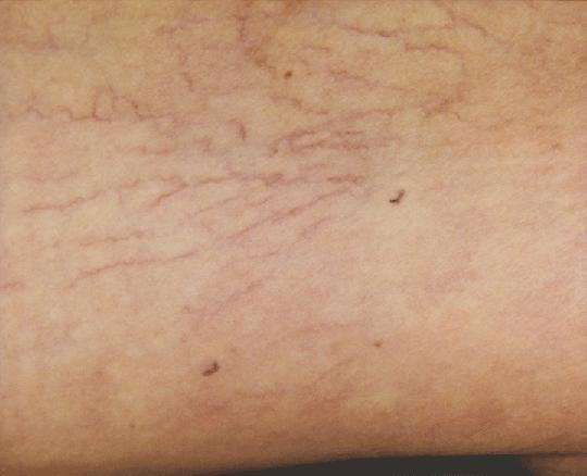 東京銀座のレティシアクリニック VビームⅡ 下肢静脈瘤症例