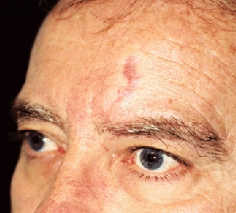 東京銀座のレティシアクリニック VビームⅡ 単純性血管腫症例