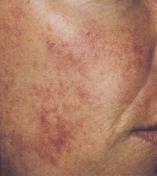 東京銀座のレティシアクリニック VビームⅡ 赤ら顔症例