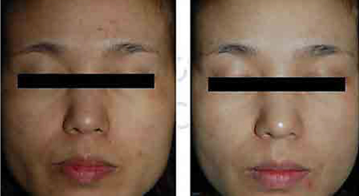 横浜のセシリアクリニック エクソソーム(水光注射オプション)症例